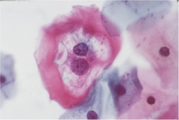 Cervical Koilocyte, with a perinuclear halo, suggestive of HPV infection.